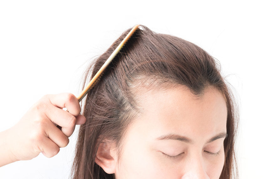 Hair thinning in women and female pattern hair loss
