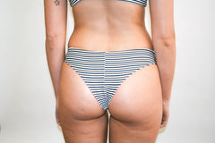 Nikki Bottoms – Black and Olive Stripe