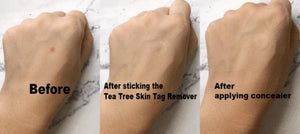 Tea Tree Skinn Tag Remover
