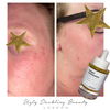 Berry Gorgeous Luxe Face Oil By Ugly Duckling Beauty™