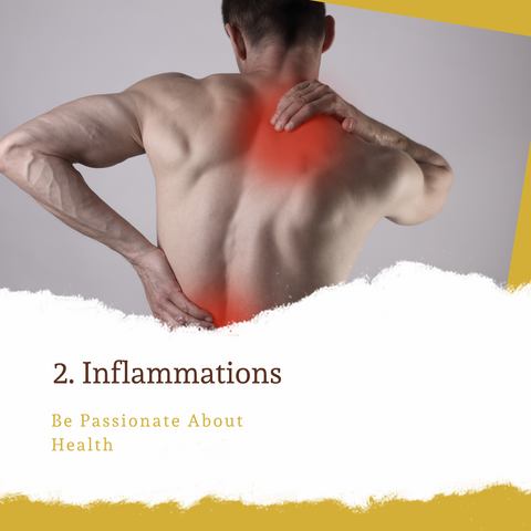 CBD Reduces Inflammations