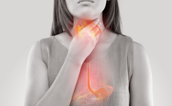 The Best OTC Medicines for Acid Reflux