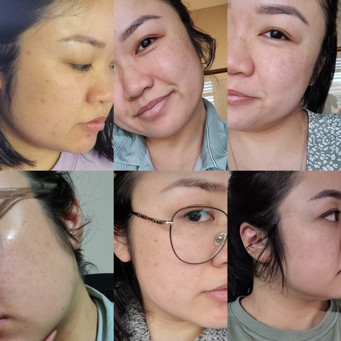 BY ECOM SPOT ERASER AMPOULE BEFORE AND AFTER RESULTS