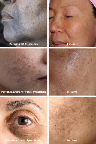 different forms and kinds of hyperpigmentation
