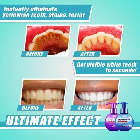 【Last Day Promotion】 - Intensive Stain Removal Whitening Toothpaste