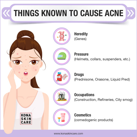 things known to cause acne infographic kona skin care
