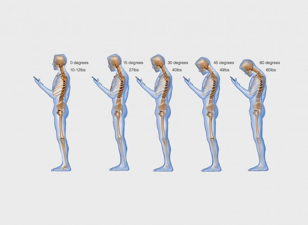 'Text neck' is becoming an 'epidemic' and could wreck your spine