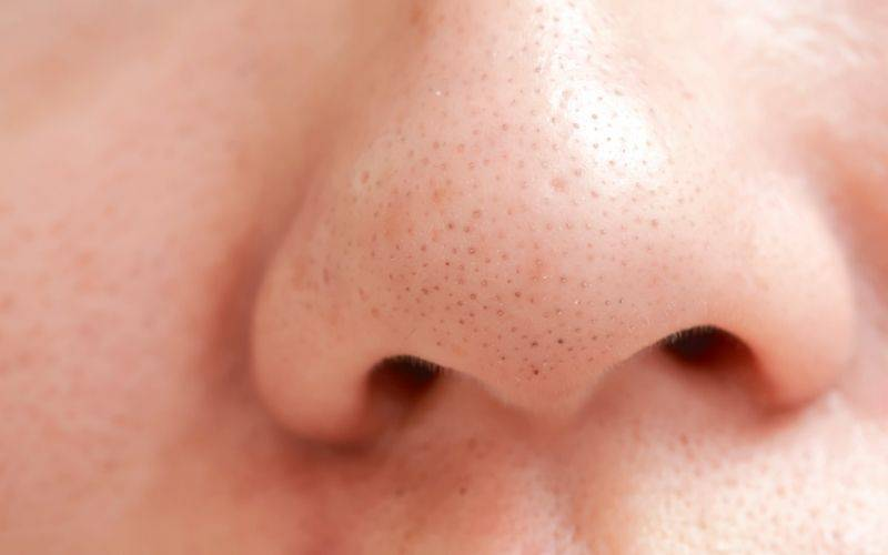 How do I get rid of blackheads?