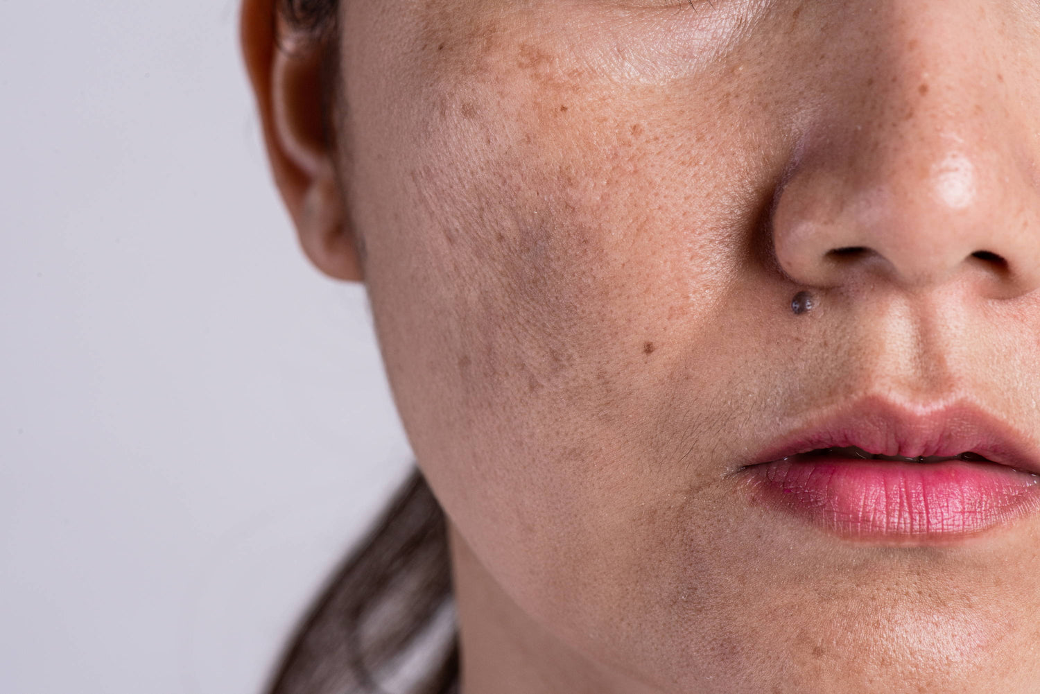 10 Protective Practices for Pigmentation