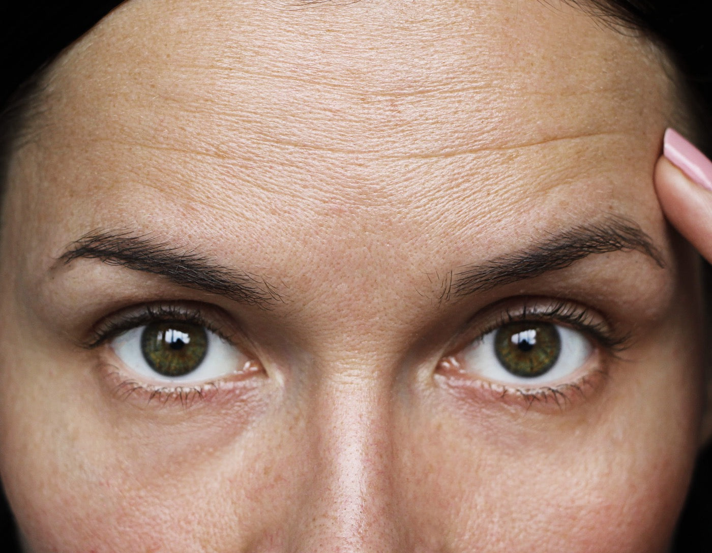 Womens face showing forehead wrinkles