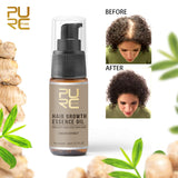 Fast Hair Growth Hair Loss Treatment Oil 20 ml
