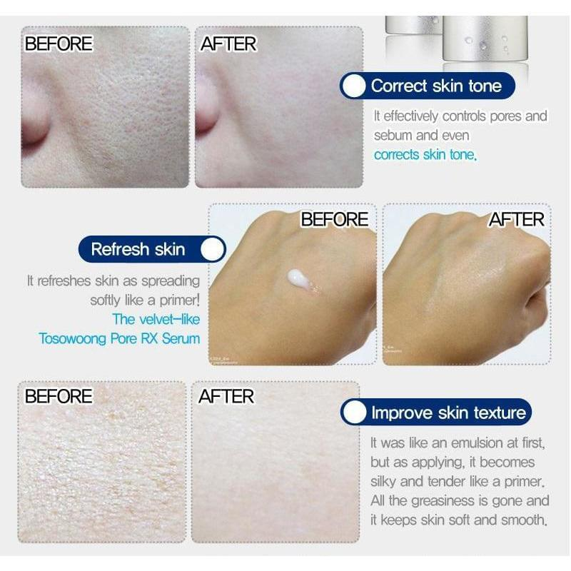 Double Effect Pore RX Tightening Serum (Note: Read the usage) - Douxskin