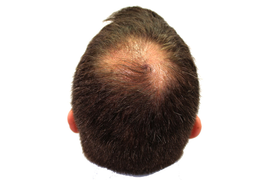 How Does Dihydrotestosterone (DHT) Cause Hair Loss?