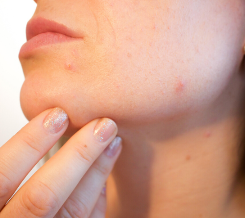Dermatologists say these 5 ingredients transform skin instantly