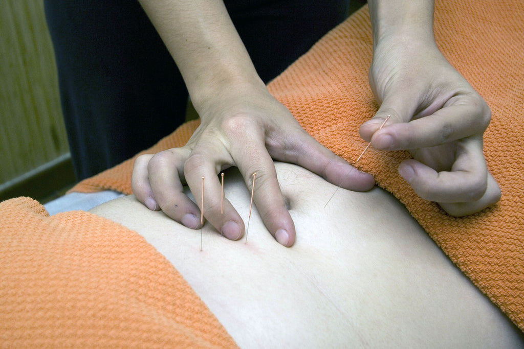 Acupuncture pain relief - Traditional Chinese Medicine