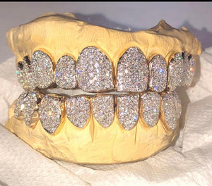 18K (16) VVS Diamond Grillz (PERM CUT)
