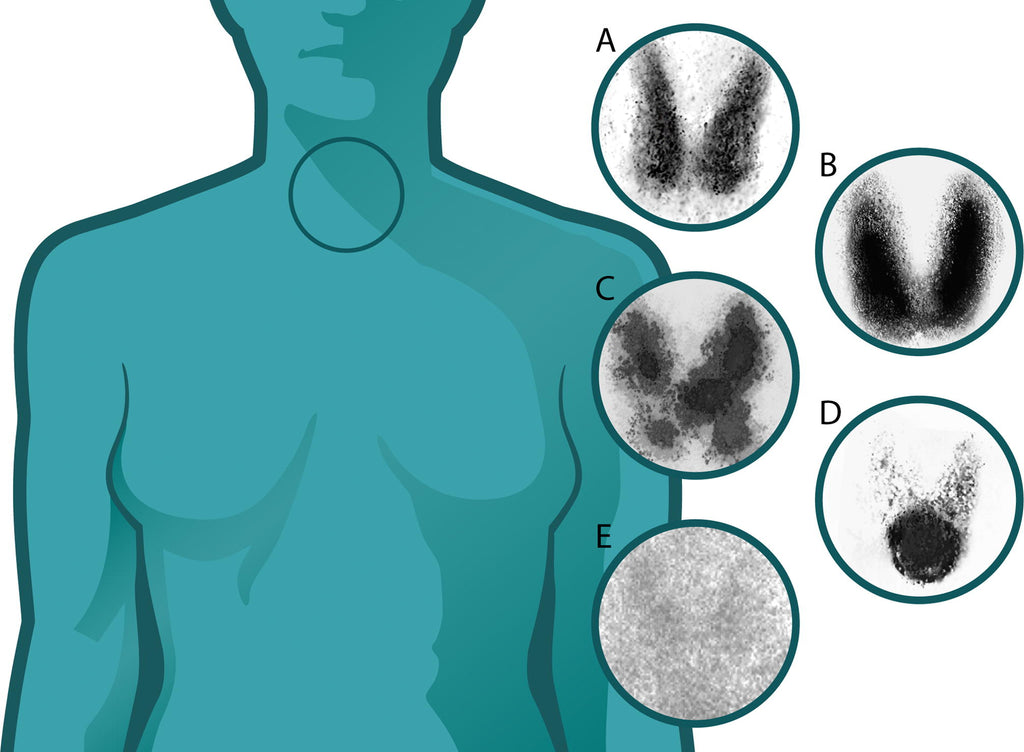 What Thyroid Does and How To Keep It Balanced