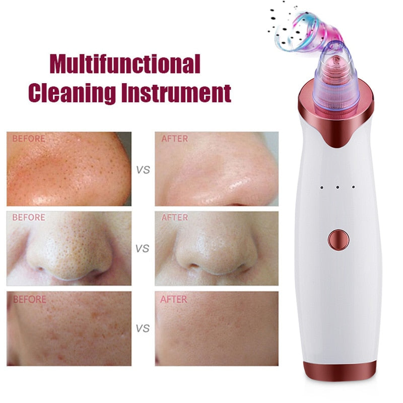 Blackhead Vacuum Extractor Deep Skin Cleaner