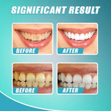 Intensive Stain Removal Whitening Toothpaste