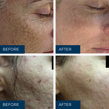 Load image into Gallery viewer, Dermapen skin needling full-face with Skin Therapist (Single)
