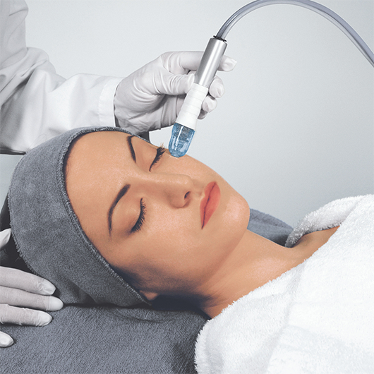 Microdermabrasion (Bundle of 4 – Save 20%)