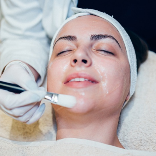 Acne or rejuvenation peel (Single)