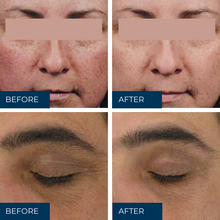 Load image into Gallery viewer, Acne or rejuvenation peel (Single)