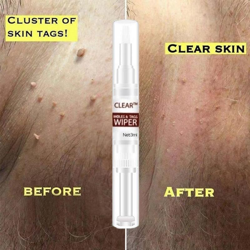 Clear™ Moles & Tag Wiper