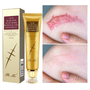 Youthful Scar Remover Cream