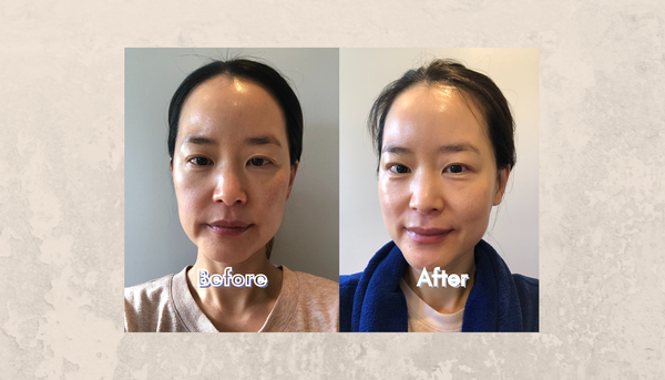 Minji-founder-of-Soffli-before-and-after-skin-pic-after-14-day-detox-and-hydrate-facial-sheet-mask-challenge