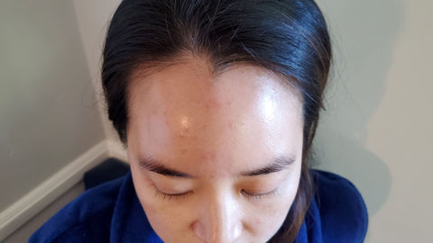 close up of woman's forehead with acne breakout issue and how to take care of skincare freakouts as part of K-beauty inspired holistic skincare habits and rituals