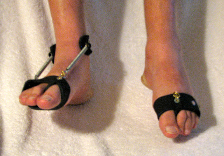 showing how the Freedom Walk AFO's Free Flex Drop Foot Brace and BareFoot Accessory (BFA) provides proper support to the foot compared to a foot without the brace