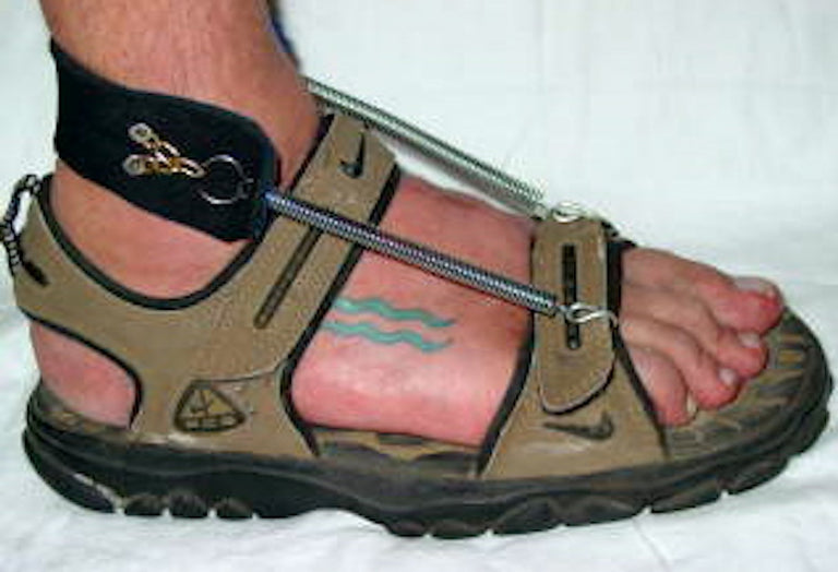 Chris wearing Freedom Walk AFO Free Flex Drop Foot Brace with a beige sandal