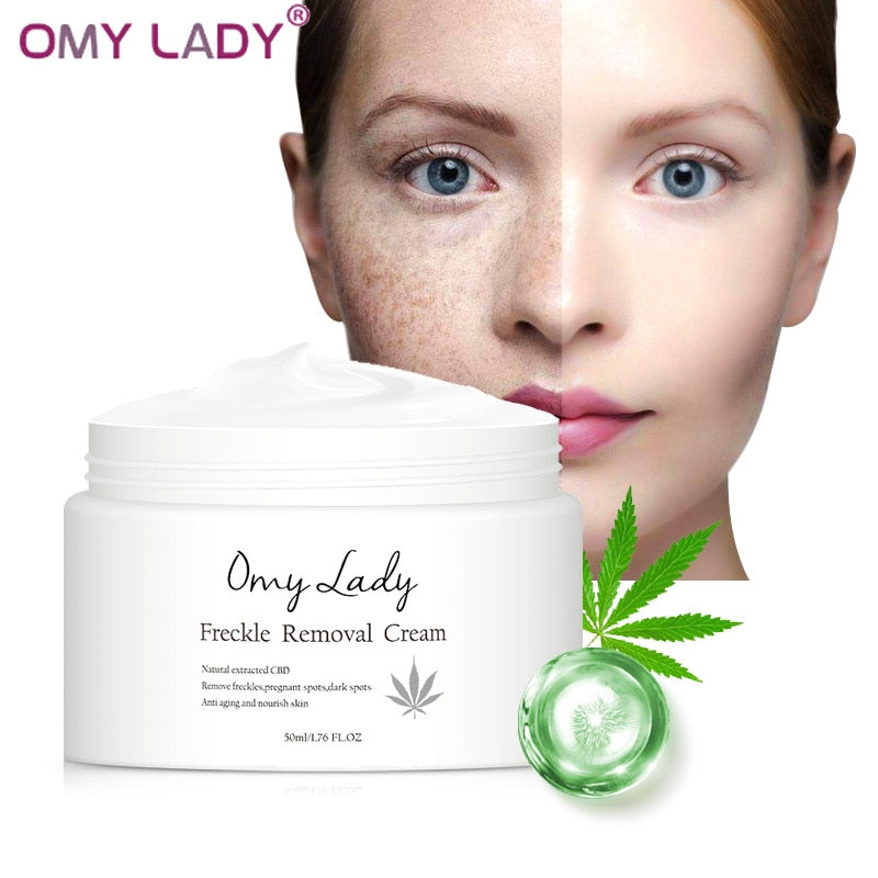 OMY LADY Freckle Removal Cream Remove Freckle Pregnant Spots Melanin Dark Spots Anti Aging Whitening Facial Cream Brightening