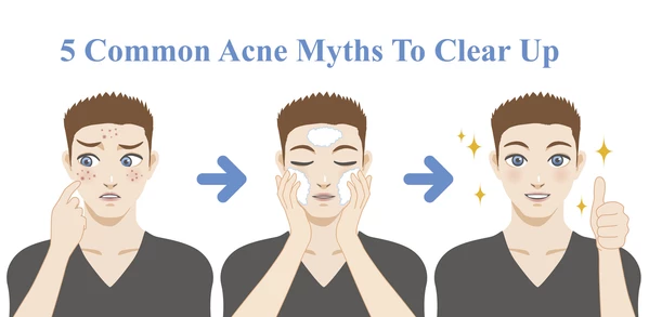 5 Common Acne Myths to clear up