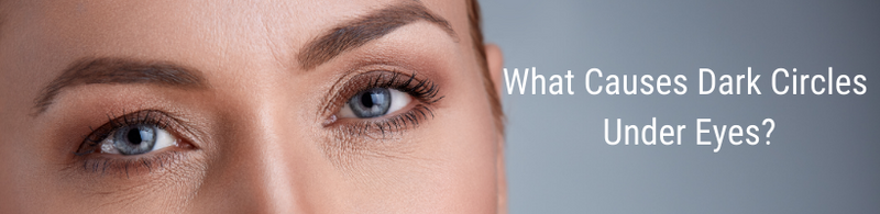 What Causes Dark Circles Under Eyes?