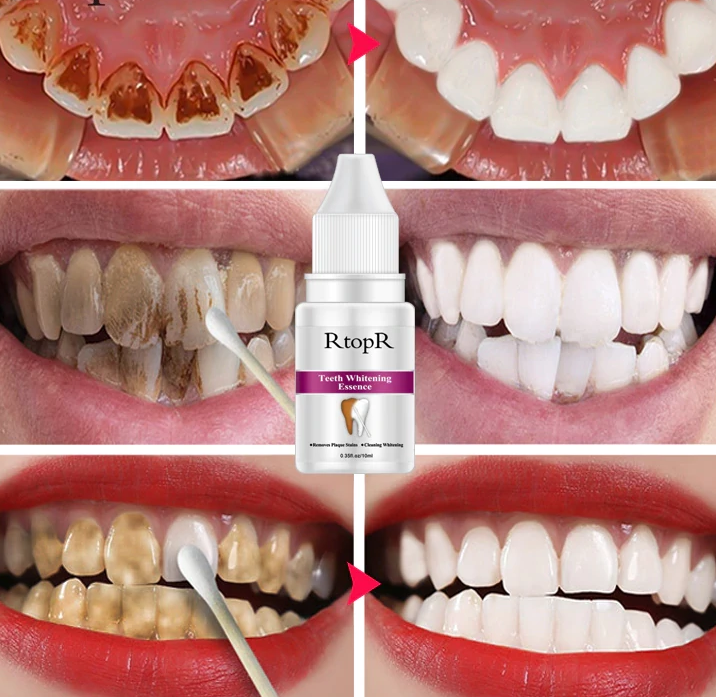 Teeth Hygiene Essence Whitening Daily Use Effective Remove Plaque Stains