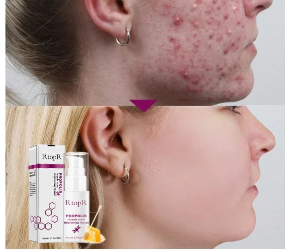 RtopR Propolis Repair Acne Brightening Serum Acne Scar Spots Cleaning Serum Acne Treatment Oil