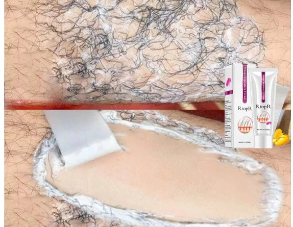Mango Depilatory Cream Body Painless Effective Hair Removal Cream for Men and Women Whitening Hand Leg Armpit Hair Loss Product