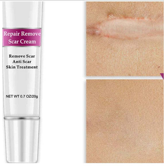 RtopR Acne Scar Stretch Marks Remover Cream Skin Repair Face Cream Acne Spots Acne Treatment Blackhead