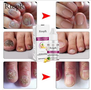 Ginger Antibacterial Nail Treatment Onychomycosis Paronychia Anti Fungal Nail Toe Nail Fungus Treatment Oil