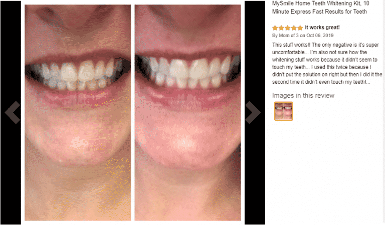 Mysmile At Home Teeth Whitening Kit Get Results In 10 Minutes