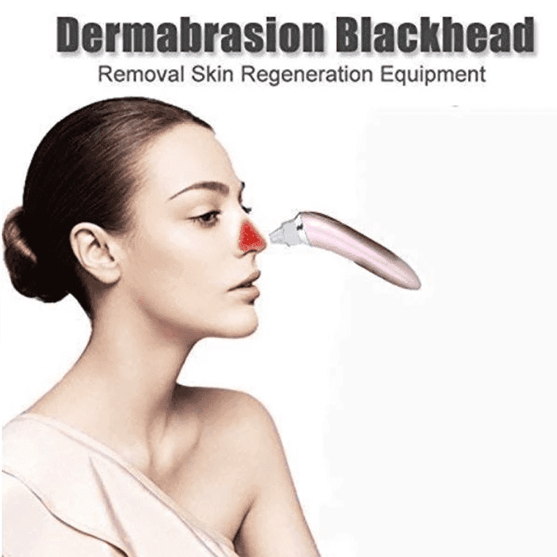 Beautiful Skin Care Expert- Black Head Remover