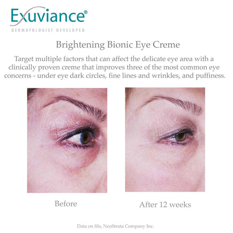 Exuviance Brightening Bionic Eye Cream PLUS Before & After