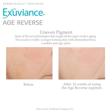 Exuviance Age Reverser Before & After
