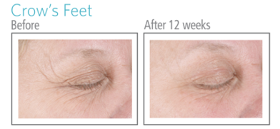 Euviance Age Reverse Eye Contour Before & After