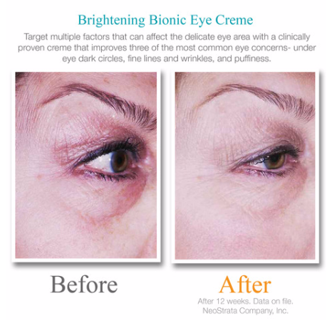 Exuviance Brightening Bionic Eye Creme Plus Before & After