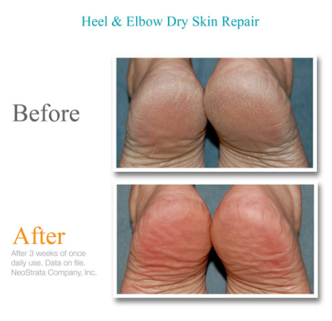 Exuviance Heel and Elbow Dry Skin Repair Before and After
