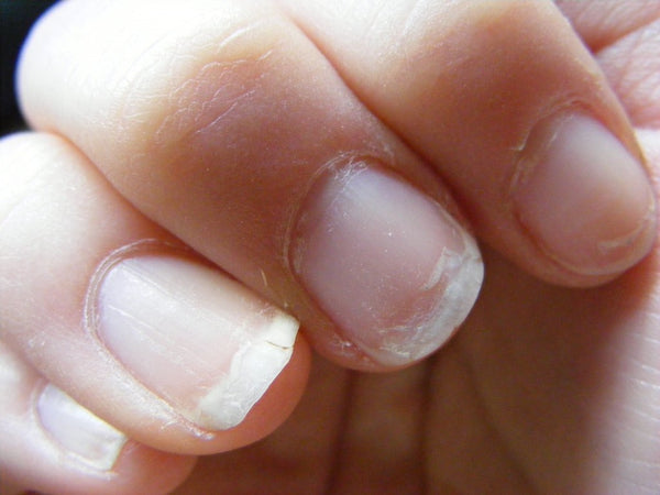 Why You Need to Stop Using Gels and Acrylics Right Now