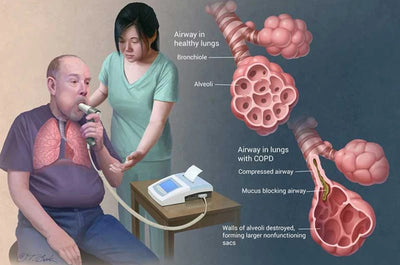 Early Diagnosis of COPD and what to do after...